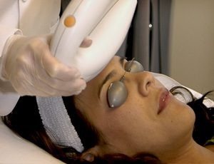 IPL-treatment-Brisbane